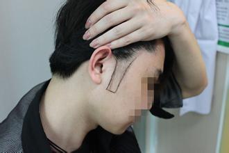 鬓角脱发的原因是什么 该如何预防