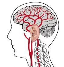 脑供血不足的症状与原因分别是什么