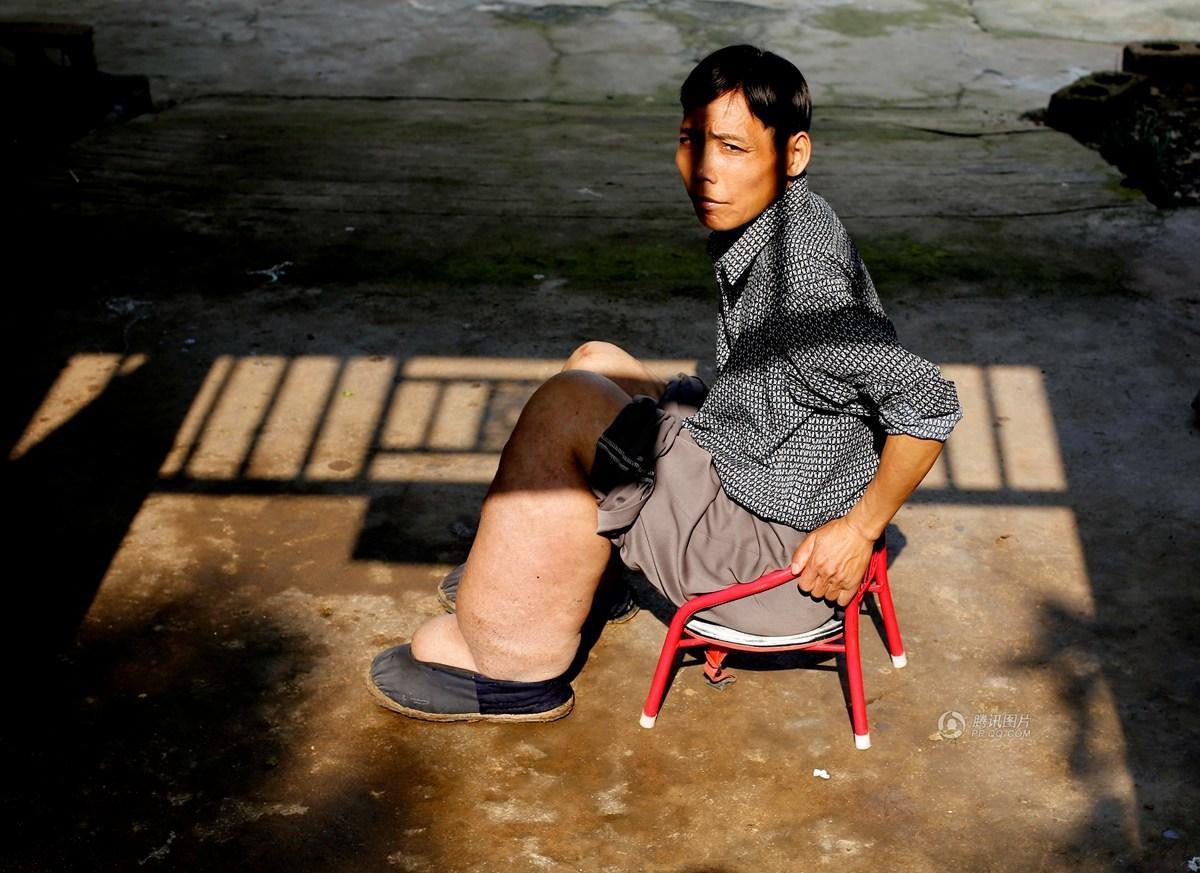 安徽男子患怪病腿肿如桶 希望得到救治