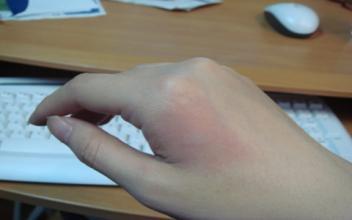 烫伤后怎么处理 烫伤正确处理方法是什么