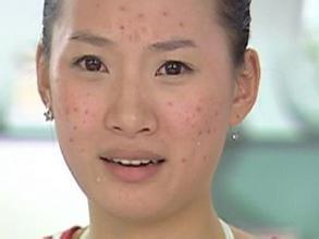 成人青春痘的原因和中医治疗方法