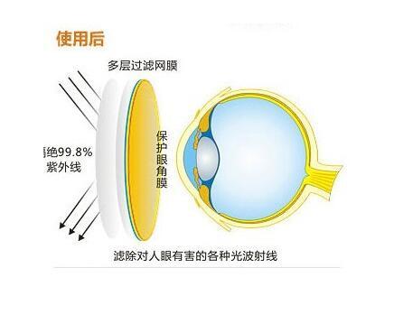 经常看电脑所谓的防辐射眼镜对眼睛有帮助吗?