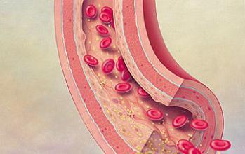 动脉硬化是什么造成的 治疗麻烦吗?
