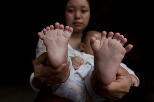 3个月男婴患多指症 31根手指脚趾需要给孩纸保少儿险