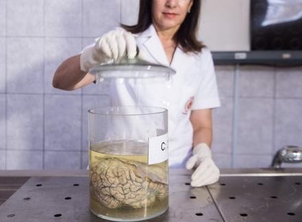 博物馆收藏人脑画面惊悚 博物馆收藏人脑你敢看吗?