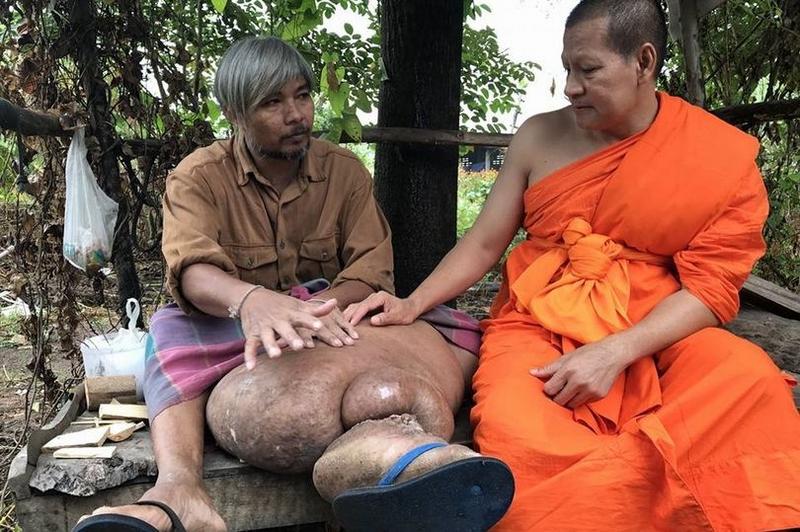 泰国男子长出象腿移动患淋巴腺炎的注意了 泰国男子长出象腿是为什么?