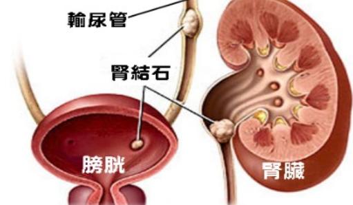 泌尿系结石怎么办?怎样预防泌尿系结石?