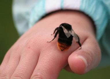 被蜂蜇急救方法有哪些?有哪些注意事项?