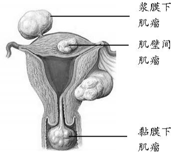 子宫肌瘤可能跟遗传因素有关 空气质量差也会有一定影响