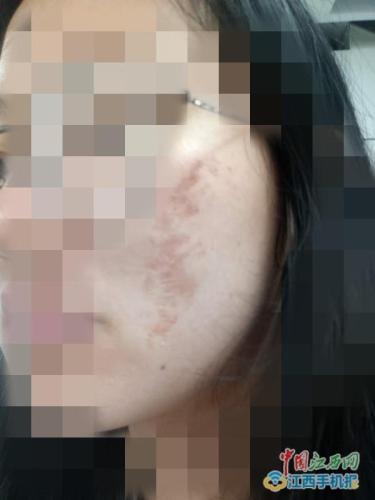 南昌天虹商场劣质化妆品搞活动 30多名大学生惨遭毁容
