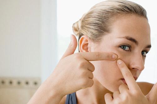 青春痘是怎么回事?脸上长痘痘是什么原因