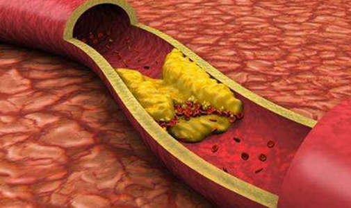 怎样预防动脉硬化?预防动脉硬化应该怎么做?