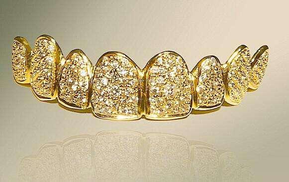 黄金牙_黄金牙多少钱_黄金牙的寿命_黄金牙好用吗_黄金牙在哪买-金投黄金网