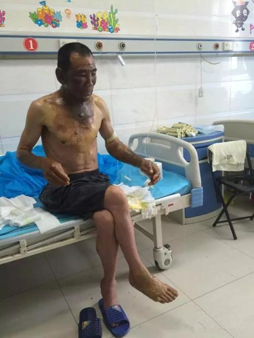 60岁环卫工遭泼油烫伤 早餐摊主获刑10个月赔偿6.6万元