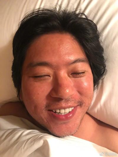 高晓松卧床晒新自拍 网友:受到一万点伤害