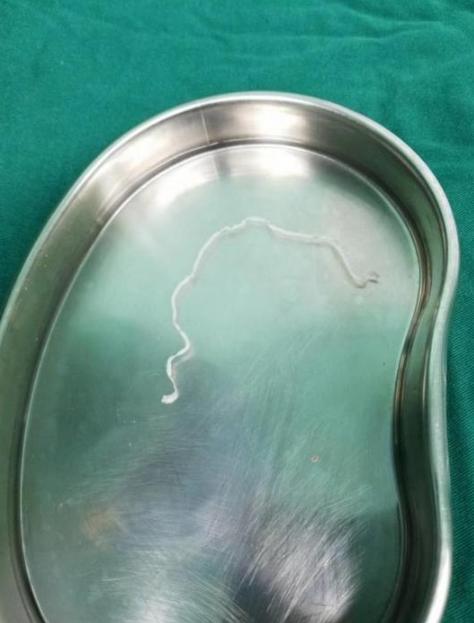 12岁女孩头部取出25厘米寄生虫 很可能与喝生水有关