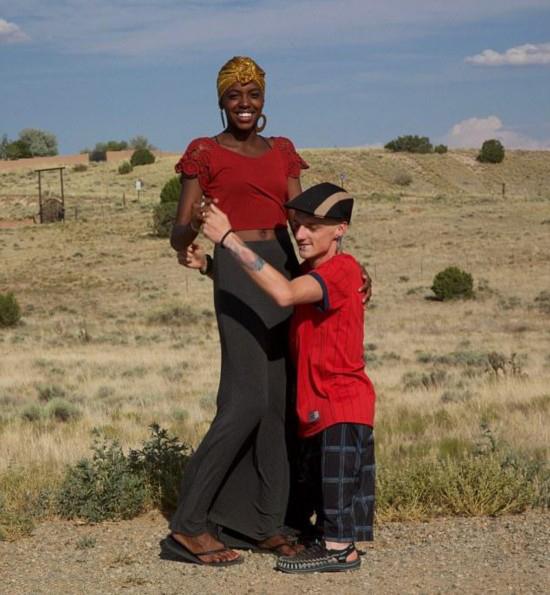 男子天生没大腿 罕见病在全球仅有25例