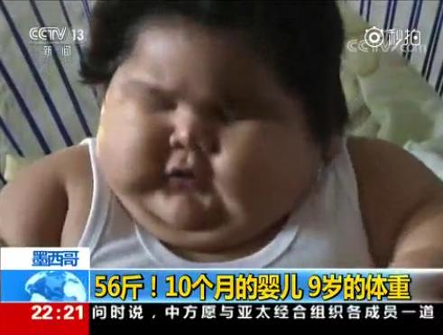10个月大婴儿重56斤 医生猜测或患有先天性罕见基因病