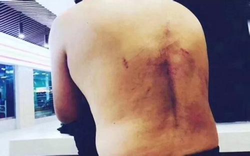"""记者调查""""天价停尸费"""" 遭殴打并被关太平间"""