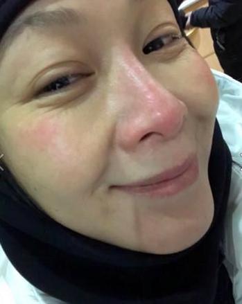 刘若英拍戏脸部冻伤 鼻子红了一大块令人心疼