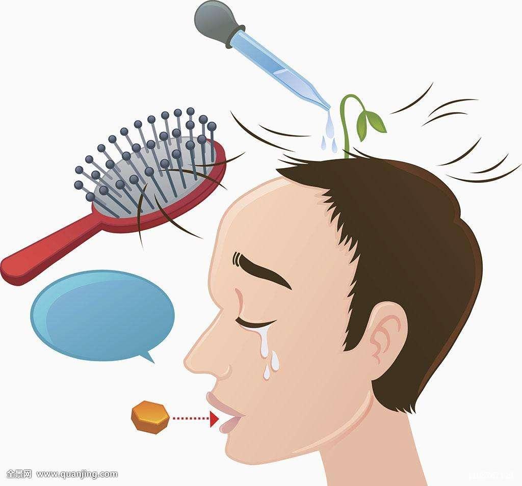 脱发分为哪几种类别