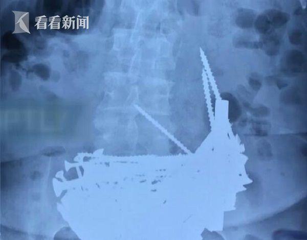 74岁贫血老太吞下1公斤铁钉 医生表示从未见过这样的病例