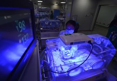 三胞胎相隔两天出生 医生称从医22年第一次遇到