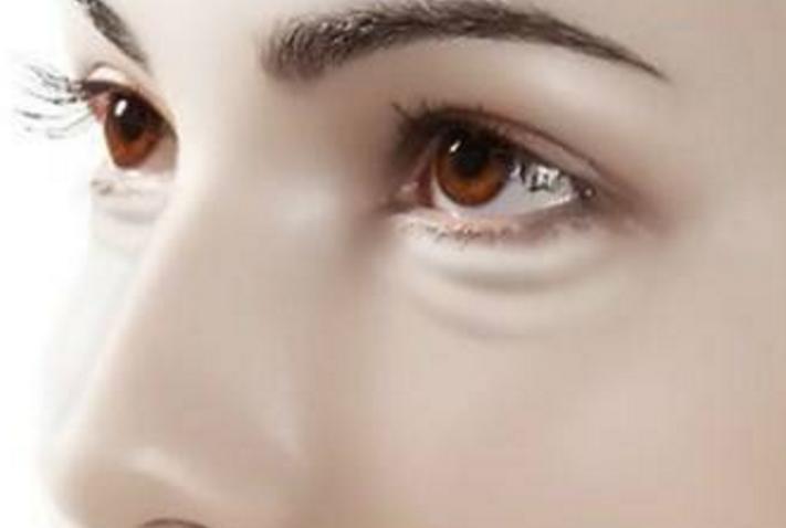 如何改善黑眼圈?教你一些小技巧