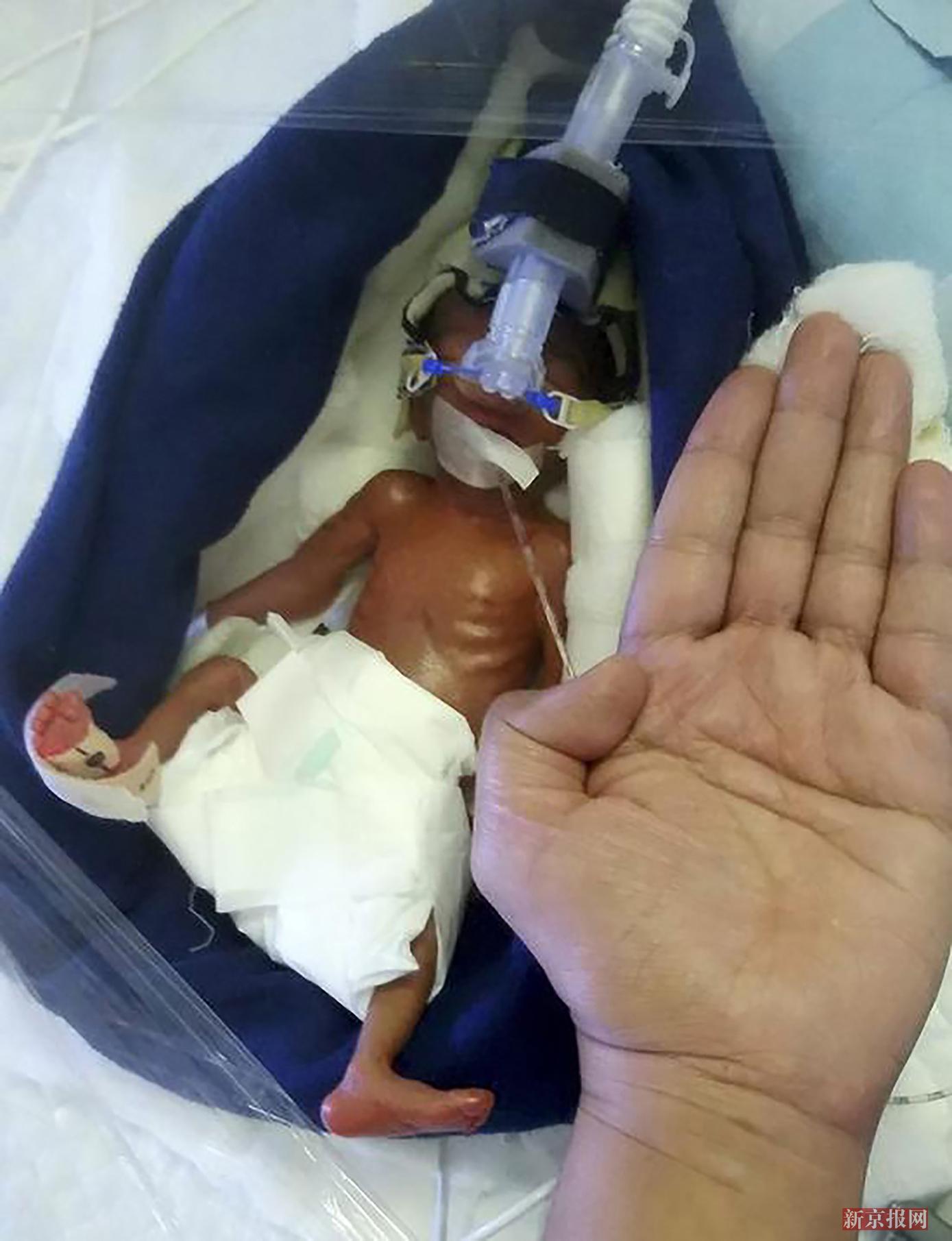 印度女子产下巴掌女婴0.8斤 成活率极低