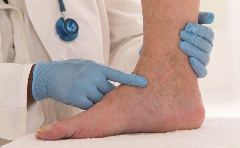 扭伤之后如何处理 扭伤之后怎么处理 扭伤之后的应急处理