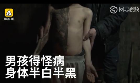 贵州一男孩身体半黑半白 黑色部分形同碳素墨水