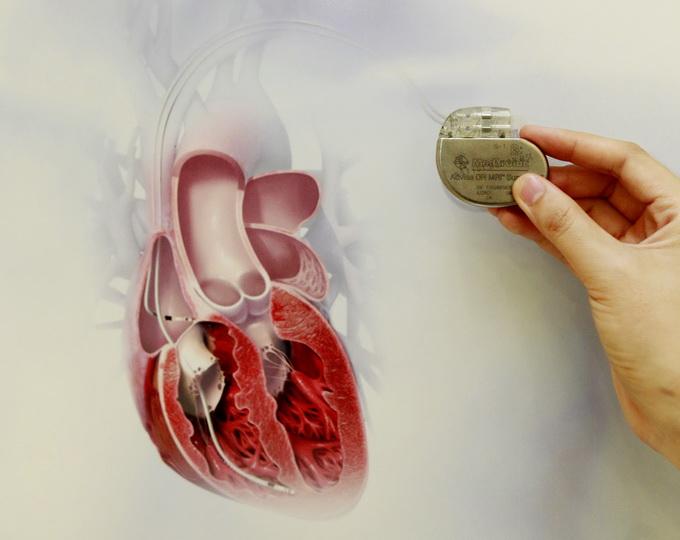 女童心脏埋起搏器 可以像正常孩子一样生活了!