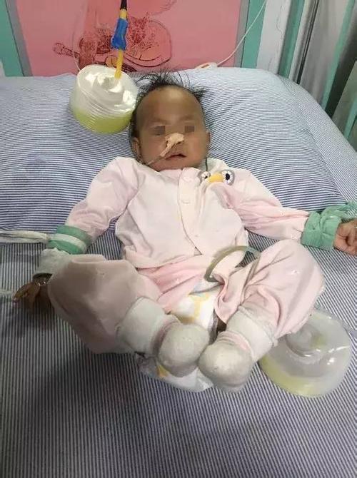 一岁女婴胃被撑破 瘦小身子却挺着个西瓜肚子