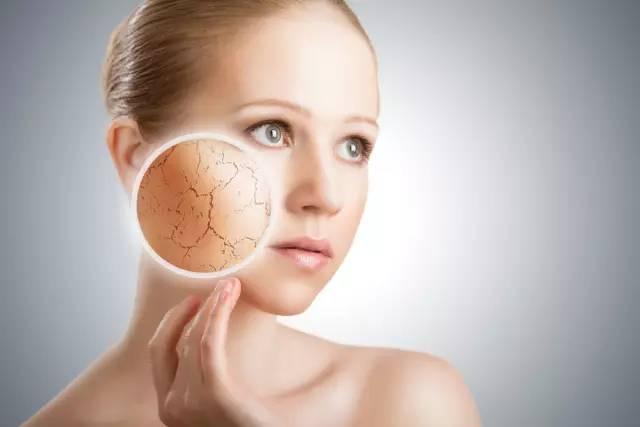 春季皮肤易过敏 两招教你安稳度过敏感季