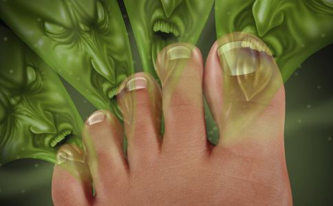 脚臭是什么原因 脚臭怎么办 脚臭如何治疗