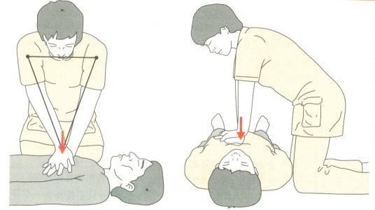 心肺复苏的急救方法