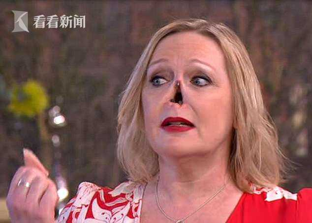 女子摘鼻子露出洞 不少观众看了惊恐不已