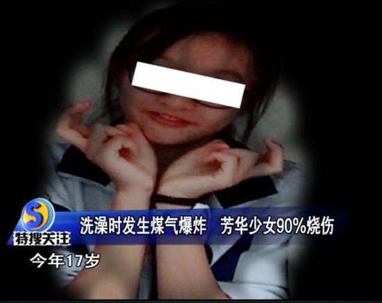 少女洗澡煤气爆炸 身体90%的皮肤都烧坏了