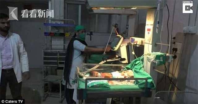 印度现塑料婴儿 出生不久出现呼吸困难的症状