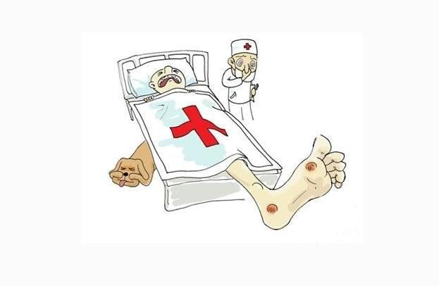 烫伤的急救措施