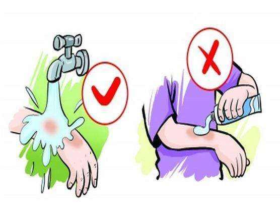 为什么烫伤后不能涂牙膏