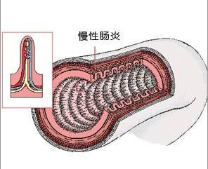 慢性结肠炎有什么症状