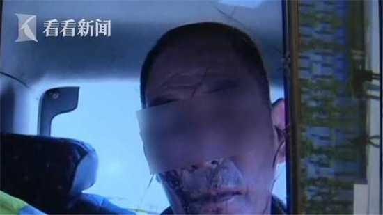 男子为1元暴打收费员 打得收费员脸上全是血
