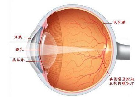 视网膜脱落原因是什么