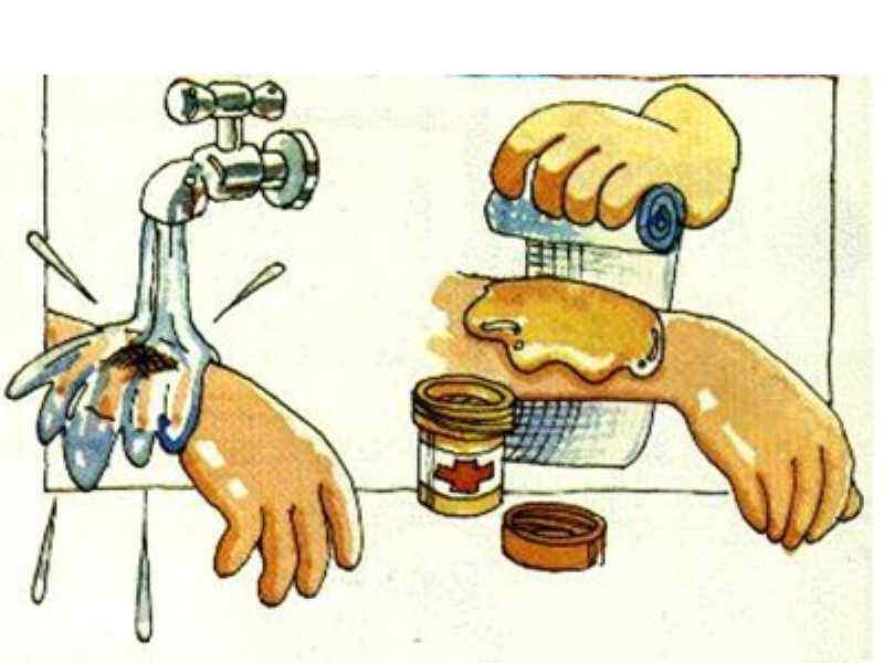如何处理烧烫伤后起的水泡