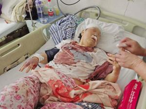 卧床老太被保姆殴打近一小时 保姆已不是第一次动手