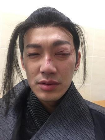 威廉拍戏出意外 眼睛遭打伤