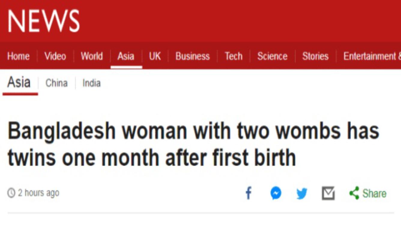 女孩拥有2个子宫 ?#32622;?6天后又生下一对龙凤胎