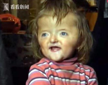 女童头骨畸形如漏斗遭老师拒收 母亲相当难过