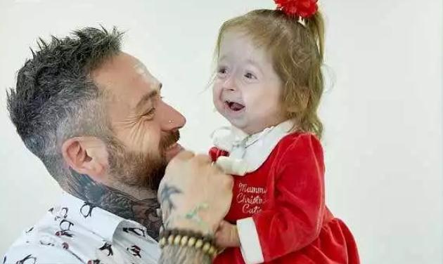 英国2岁女童面容衰老 跟人交流都是通过手语